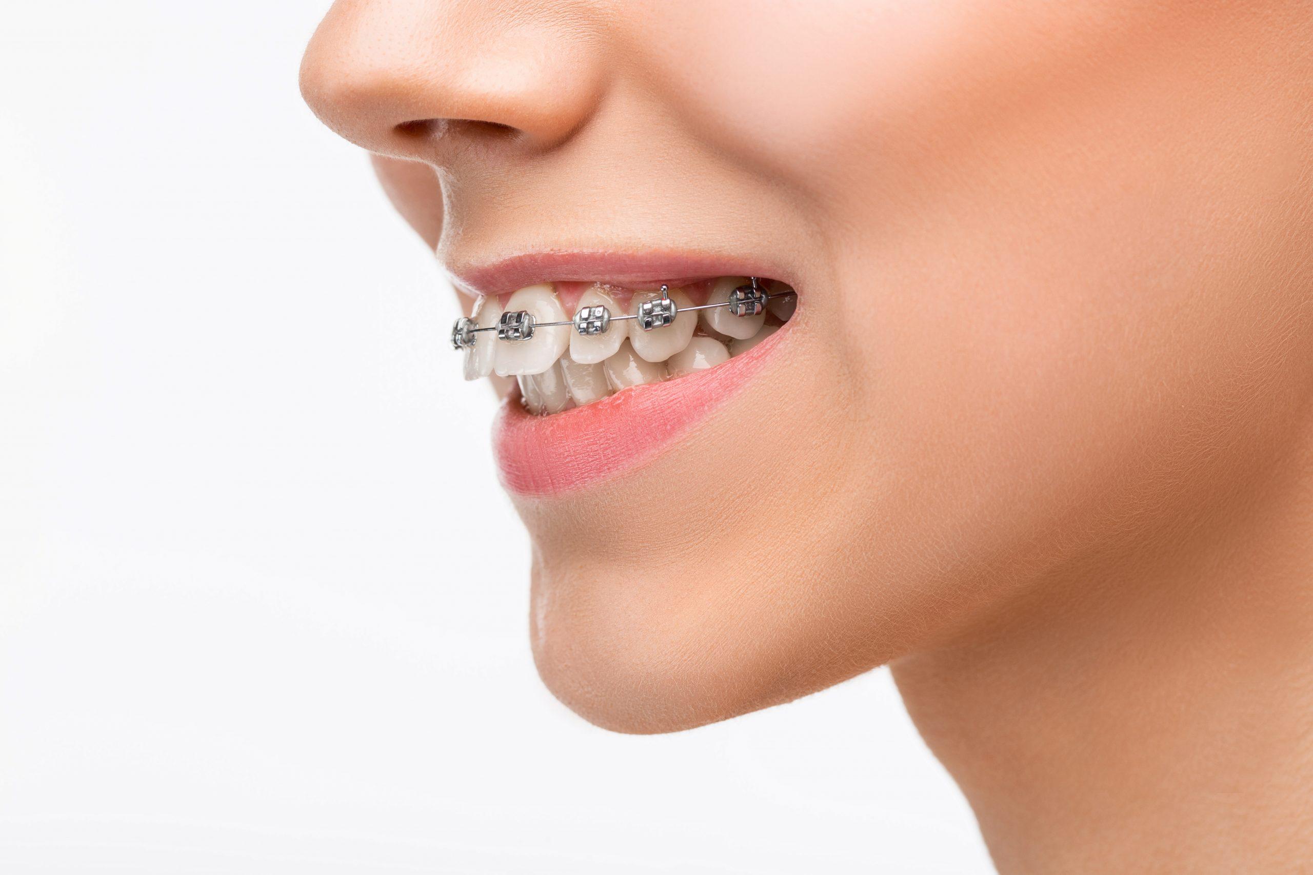 Clinica V-dental - ortodontie