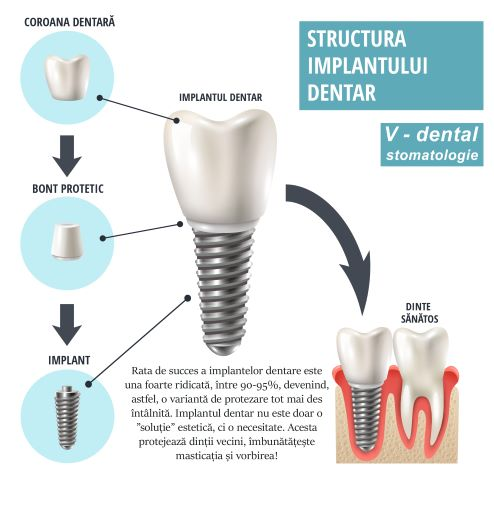 Clinica V-dental - implant dentar
