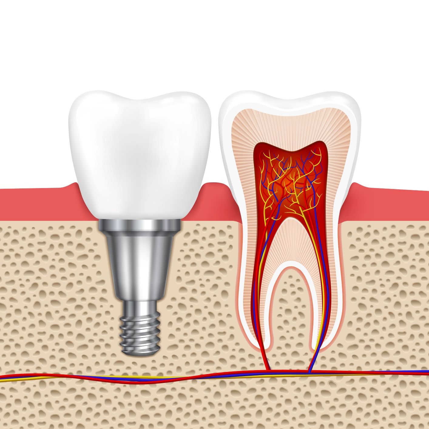Implant dentar Straumann